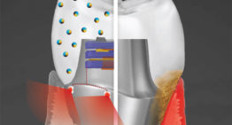 Smart Dental Implant Resists Bacteria and Generates Electricity